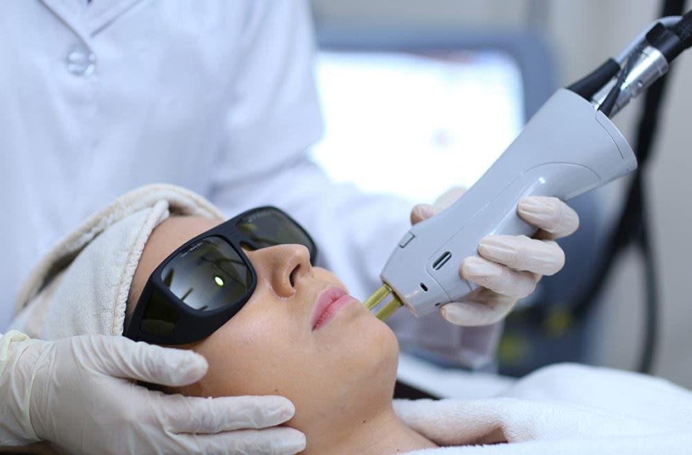 depilación laser terminante